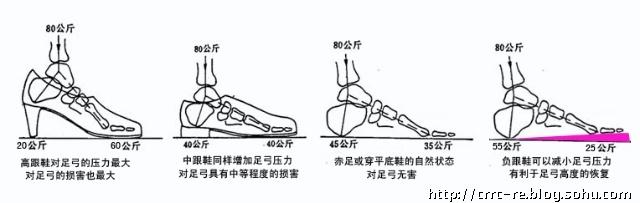 """平足症。跖腱膜松弛是平足症的重要成因,它位于足底,像弓弦一样维持着足弓的稳定。鞋跟越高,足弓的后臂越长,跖腱膜所受的拉力(张力)也就越大。如果长期拉力过大,跖腱膜松弛,足弓就随之降低,严重的会造成平足。鞋跟高度与跖腱膜所受拉力的关系,从鞋底的构造上就能清楚地反应出来。很多鞋的脚心部位(相当于跖腱膜的位置)都有一条钢板,称为""""钩心""""。它是用来加固鞋底的。鞋跟越高对钢钩心强度的要求也就越高,否则鞋底就容易被拉断,无跟的鞋则不必使用钩心。鞋跟的高度越大,鞋底越需要钢钩心来加固,而人"""