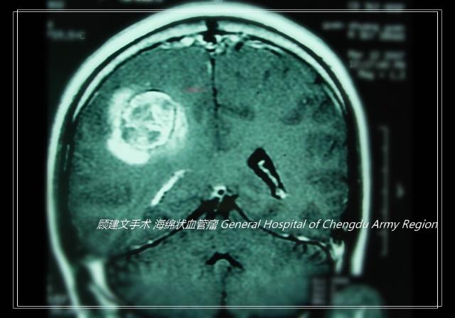 问题描述:右手中指海绵状血管瘤十年前在协和做过手术